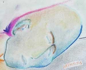 Arthritis chalk