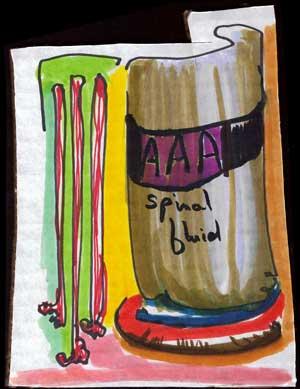 AAA spinal fluid
